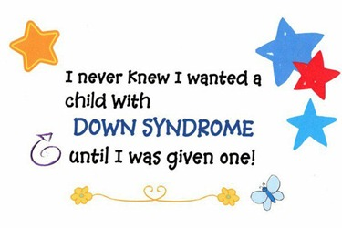 DownSyndrome.1[6]